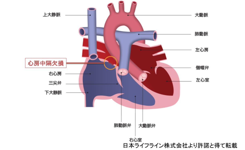 心房中隔欠損(ASD)