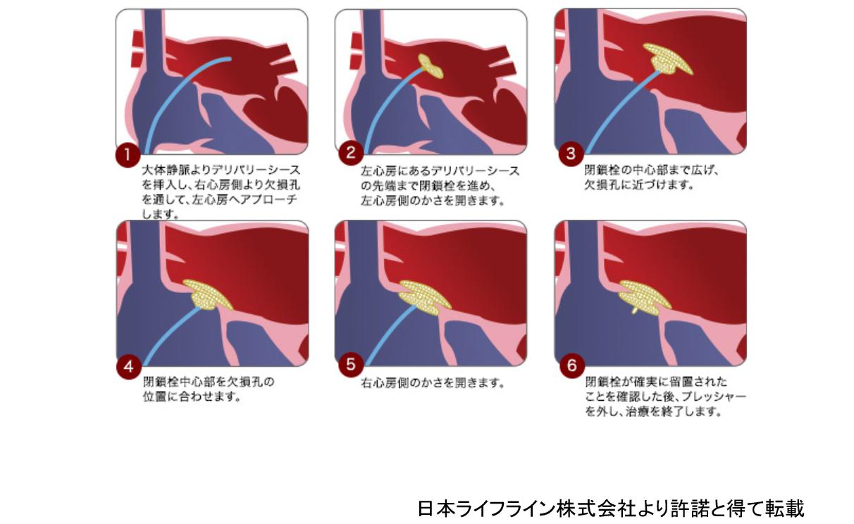 心房中隔欠損に対するカテーテル治療の流れ